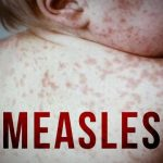 Measles Outbreak That Sickened 312 In Rockland County Declared Officially Over